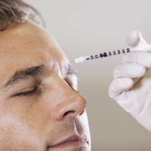 Mid adult man (30s) receiving botulinum toxin injection.